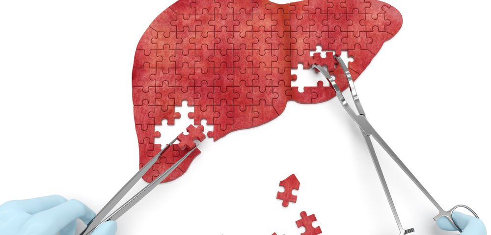 SIR-Spheres Radiation Therapy Increases Chance Liver Cancer Can Be Operated on, Study Reports